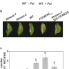 FITNESS Acts as a Negative Regulator of Immunity and Influences the Plant Reproductive Output After Pseudomonas syringae Infection